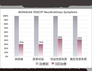 モナリザタッチ尿漏れ症状の3回治療の患者評価